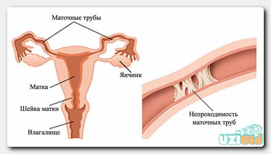 Проверка УЗИ на проходимость маточных труб