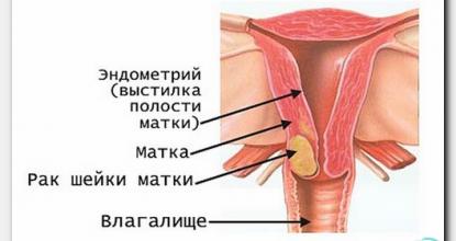 Можно ли увидеть рак шейки матки на УЗИ