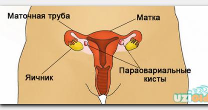 Матка и яичники: нормальные размеры по УЗИ