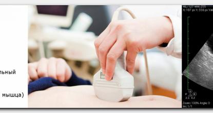 Как правильно подготовиться к УЗИ сканированию мочевого пузыря?