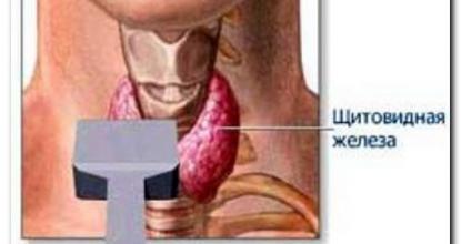 Что показывает УЗИ щитовидной железы? Расшифровка
