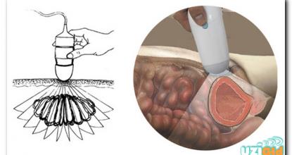 Показания и нормы УЗИ мочевого пузыря