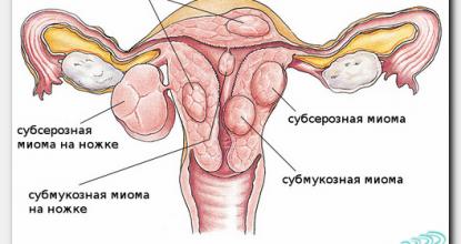 Миома матки на УЗИ органов малого таза