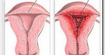 На какой день цикла нужно делать УЗИ при эндометриозе?