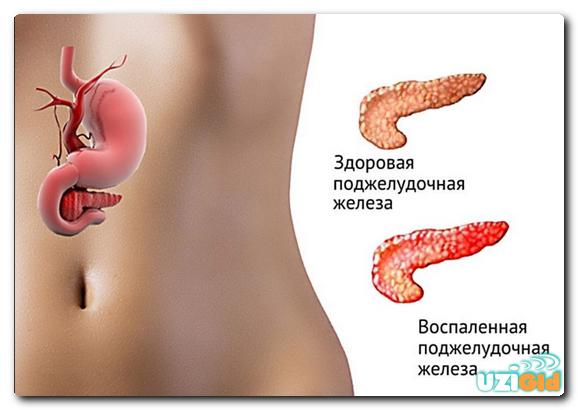 УЗИ поджелудочной железы, показатели нормы