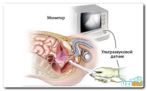 Подготовка к исследованию УЗИ предстательной железы