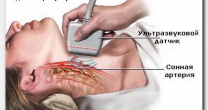 Что показывает УЗИ сканирование сосудов шеи?